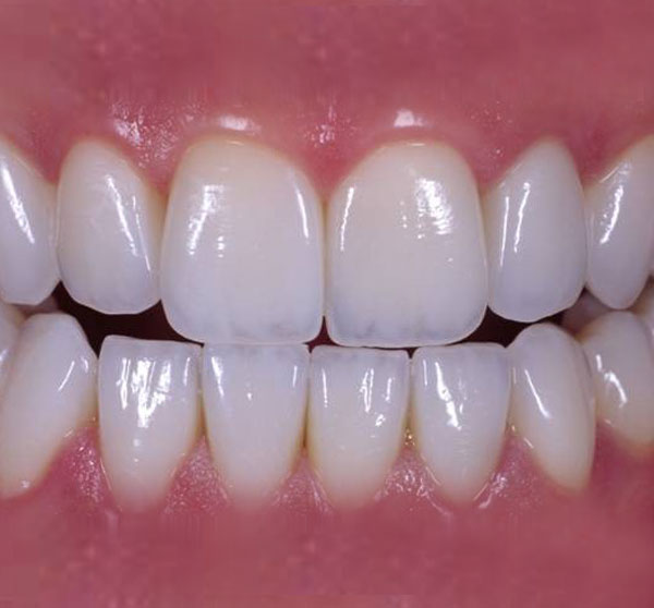 Why You Should Get A Zirconia Crown in the Philippines ...