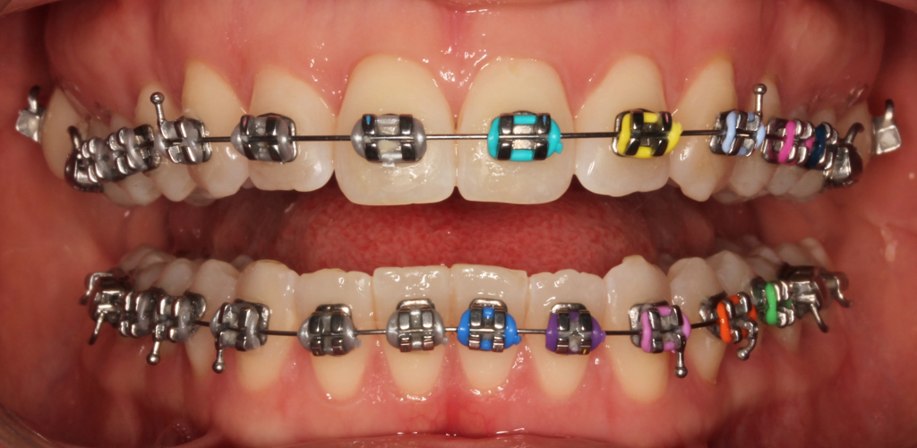 Colored Metal Braces Asian Sun Dental Clinic