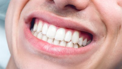 best cosmetic dentistry services